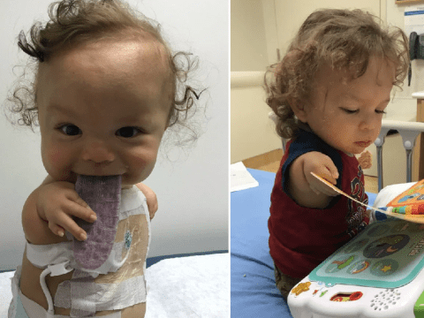 Toddler born with no arms or knees hopes to take his first steps after pioneering surgery