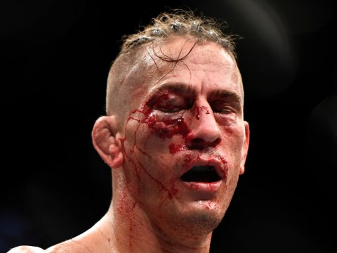 Niko Price left with gruesome eye injury in Vicente Luque loss at UFC 249