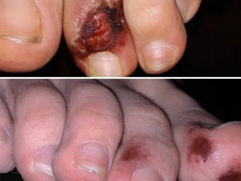 Doctors flooded with calls about 'Covid toes' and other rashes