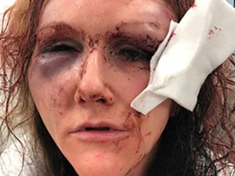 Woman left looking like 'monster from horror film' after ex beat her up