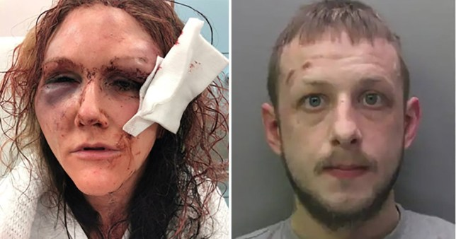Domestic abuse victim Lisa O'Malley was unrecognisable after Jonathon Youthed violently attacked her at home