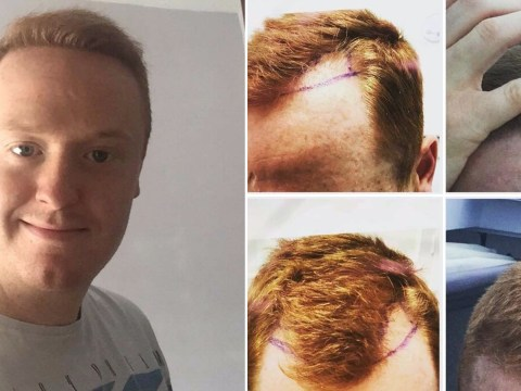 Man gets £2,000 hair transplant after woman on dating app snubs him for 'going bald'