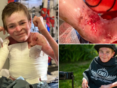Terminally ill teen with agonizingly sensitive skin defies doctors who said he'd never reach adulthood