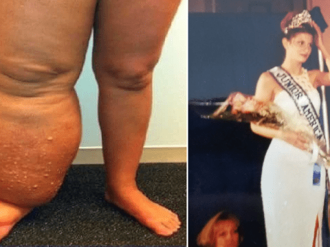 Cruel bullies branded beauty queen 'elephant girl' after rare condition made her leg triple in size