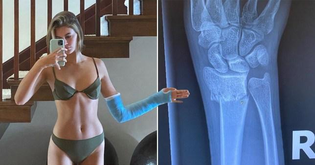 Kaia Gerber broken arm