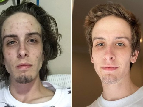 Drug addict posts inspiring before and after photos to celebrate recovery