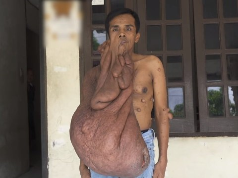 Man with 30kg of tumours on his body can't afford to get rid of them