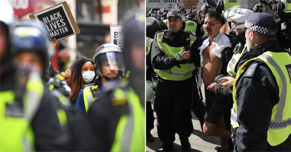 Police lead an injured man away who was allegedly part of the right-wing element of the protest