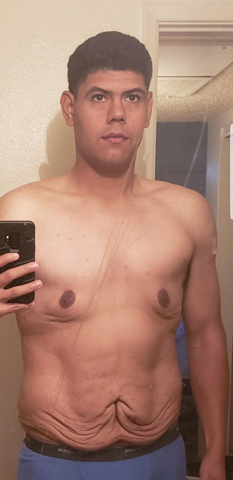 Adan Prescott aux seins nus dans un miroir ayant perdu 250 livres.