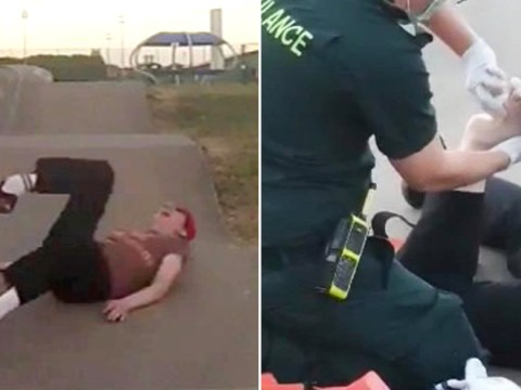 Horrific video shows skateboarder's ankle fracture as he falls