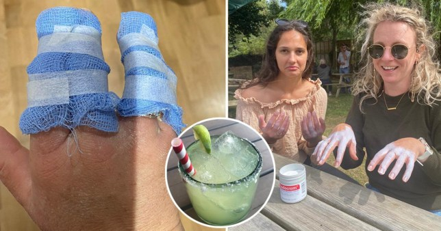 Severe burns show why you shouldn't drink margaritas in the sun