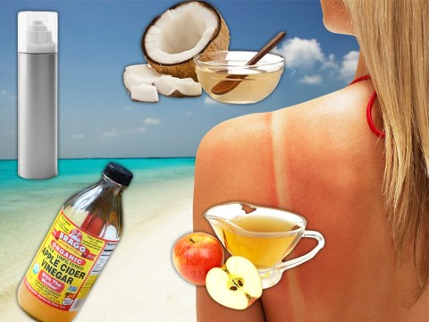 The best home remedies to help with sunburn