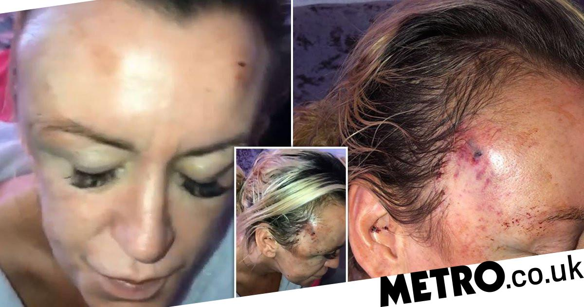 Terrified mum begged for mercy as she was punched to the ground in random attack - metro