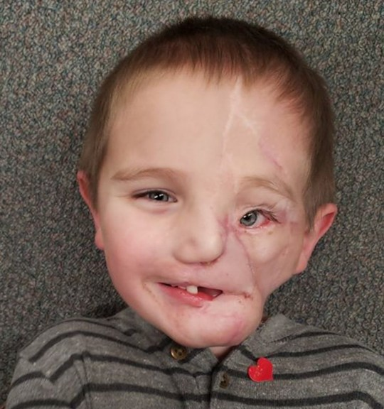 Ryder Wells was attacked by rottweilers, who ripped off half his face