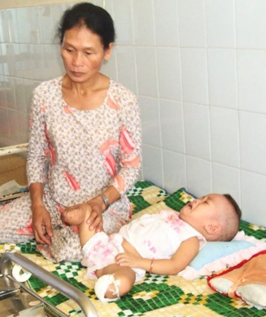 Haven Shepherd in hospital after the bomb blast that killed her birth parents