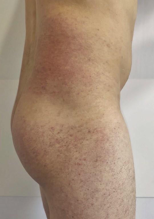 8542579 Les lésions buccales peuvent être un nouveau symptôme de coronavirus, suggère une étude - Source et demande de prévisualisation / bouffée - SANTÉ