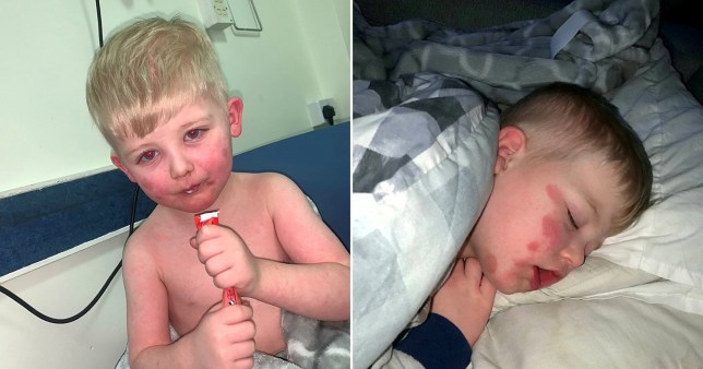 Freddie Merrylees, three, was hospitalised for five days in April 2020 after he developed a rash all over his body