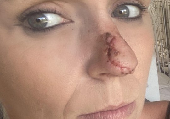 The scar on Shereen Mawson's nose after the attack. See SWNS story SWNNbite. A mum recovering from painful surgery to reattach her nose after a dog attack said she was left in tears after pharmacy staff refused to serve her for not wearing a face mask. Shereen Mawson was trying to buy medication at her local store when a female worker shouted at her for not wearing a face covering, she said. The 36-year-old has spent the last two weeks at home recovering from a freak dog attack that left her with the cartilage from her nose hanging off and extremely painful injuries to her face. As a result of the attack by a friend's pet, Miss Mawson has visible facial scars from the stitching that is still in the process of healing and in a delicate position.