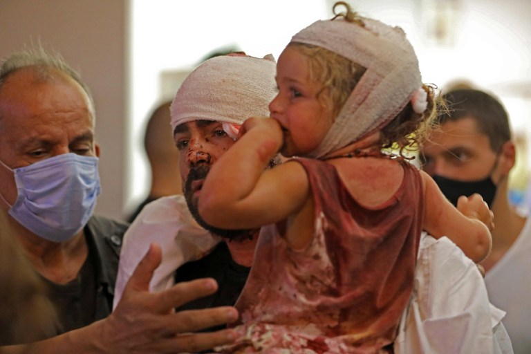 EDITORS NOTE: Graphic content / Wounded people are treated at a hospital following an explosion near the port in the Lebanese capital Beirut on August 4, 2020. - Two huge explosion rocked the Lebanese capital Beirut, wounding dozens of people, shaking buildings and sending huge plumes of smoke billowing into the sky. Lebanese media carried images of people trapped under rubble, some bloodied, after the massive explosions, the cause of which was not immediately known. (Photo by IBRAHIM AMRO / AFP) (Photo by IBRAHIM AMRO/AFP via Getty Images)