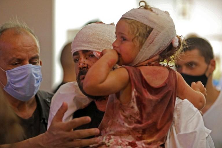 NOTE DE LA RÉDACTION: Contenu graphique / Des blessés sont soignés dans un hôpital à la suite d'une explosion près du port de la capitale libanaise Beyrouth le 4 août 2020. - Deux énormes explosions ont secoué la capitale libanaise Beyrouth, blessant des dizaines de personnes, secouant des bâtiments et envoyant d'énormes des panaches de fumée s'envolant dans le ciel.  Les médias libanais ont diffusé des images de personnes piégées sous les décombres, certaines ensanglantées, après les explosions massives, dont la cause n'était pas immédiatement connue.  (Photo IBRAHIM AMRO / AFP) (Photo IBRAHIM AMRO / AFP via Getty Images)
