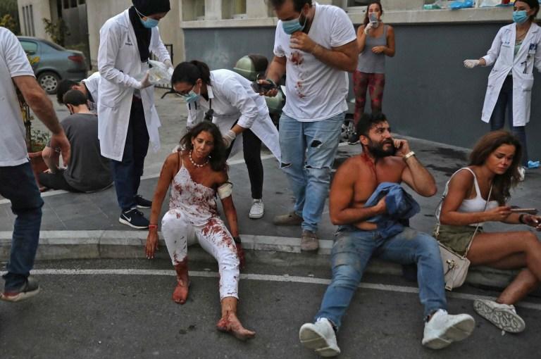 NOTE DE LA RÉDACTION: Contenu graphique / Des blessés sont photographiés devant un hôpital à la suite d'une explosion dans la capitale libanaise Beyrouth le 4 août 2020. - Deux énormes explosions ont secoué la capitale libanaise Beyrouth, blessant des dizaines de personnes, secouant des bâtiments et envoyant d'énormes panaches de fumée se gonflant dans le ciel.  Les médias libanais ont diffusé des images de personnes piégées sous les décombres, certaines ensanglantées, après les explosions massives, dont la cause n'était pas immédiatement connue.  (Photo IBRAHIM AMRO / AFP) (Photo IBRAHIM AMRO / AFP via Getty Images)