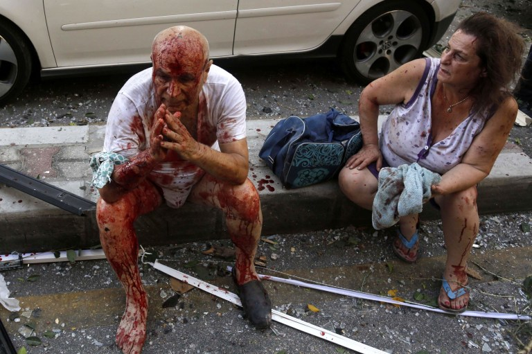 August 4, 2020, Beirut, Lebanon: Wounded people sit on a street following an explosion in the Lebanese capital. Two huge explosion rocked the Lebanese capital Beirut, wounding dozens of people, shaking buildings and sending huge plumes of smoke billowing into the sky. Lebanese media carried images of people trapped under rubble, some bloodied, after the massive explosions, the cause of which was not immediately known. 04 Aug 2020 Pictured: August 4, 2020, Beirut, Lebanon: Wounded people sit on a street following an explosion in the Lebanese capital. Two huge explosion rocked the Lebanese capital Beirut, wounding dozens of people, shaking buildings and sending huge plumes of smoke billowing into the sky. Lebanese media carried images of people trapped under rubble, some bloodied, after the massive explosions, the cause of which was not immediately known. Photo credit: ZUMAPRESS.com / MEGA TheMegaAgency.com +1 888 505 6342