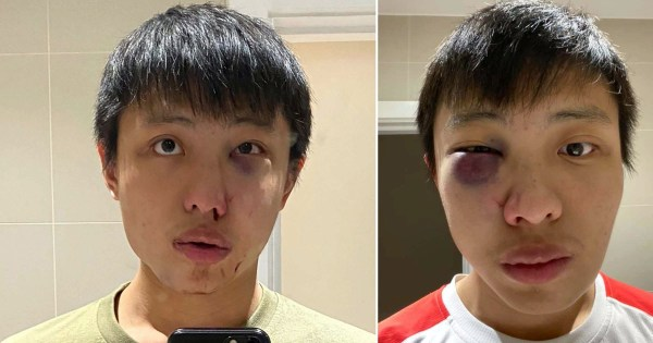 Boy, 15, admits GBH over racist mob attack on Singaporean student who was told: 'I don't want your coronavirus in my country'