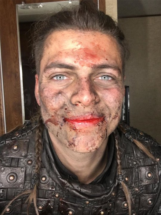 Vikings star Alex Høgh Andersen