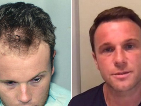 Man who spent over £30k on botched hair transplants says he would do it all again: 'It's a valid investment in my self-image'