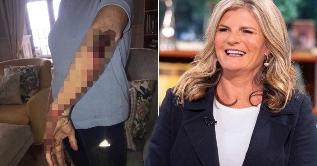 Susannah Constantine pictured with bloodied elbow after running accident and on This Morning