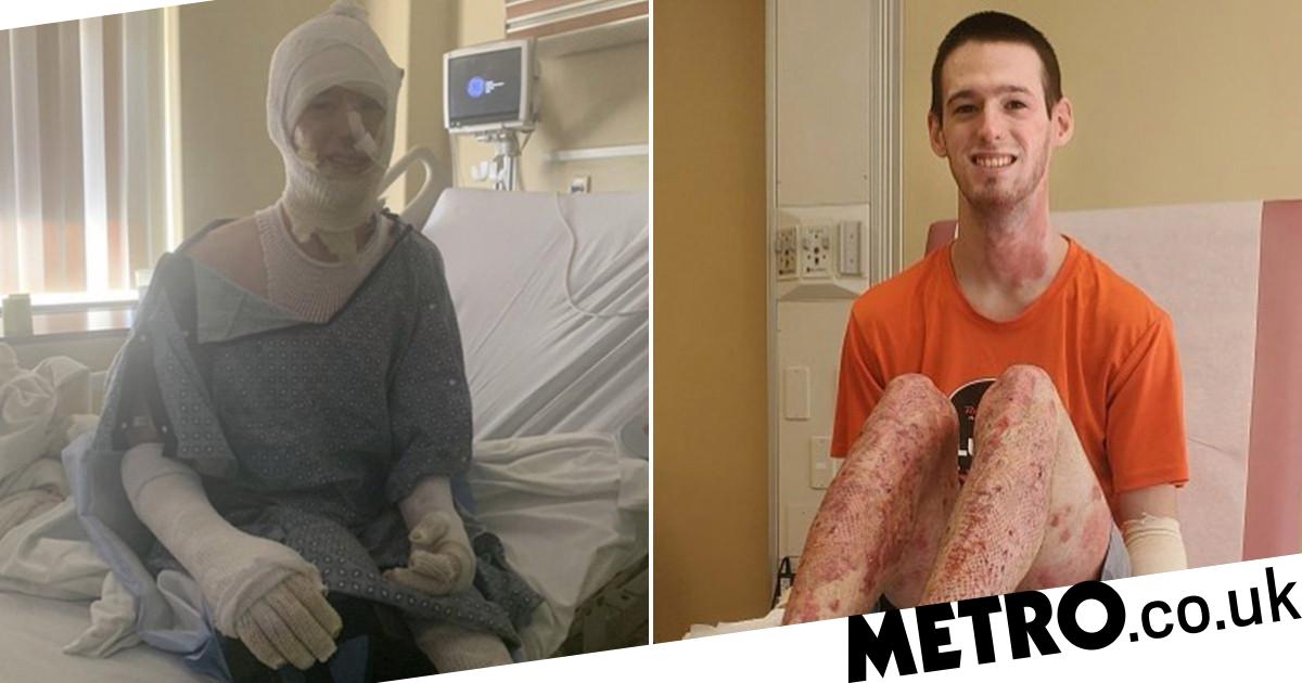 Image of article 'Student who set himself on fire cooking fried chicken felt his skin 'melting'