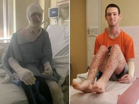 Student who set himself on fire cooking fried chicken felt his skin 'melting' during freak accident