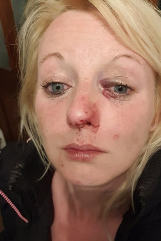 Katrina Pidden after Mitchell Liversedge attacked her