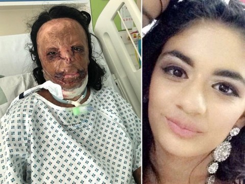 Teenager suffers burns across face and body after head lice shampoo catches fire