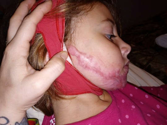 CATERS NEWS - (PICTURED the scars on Izabellas face after the burns) - A six-year-old has been left with horrendous facial burns - after hand sanitiser she was playing with caught fire. Izabella Reaume has been left with severe scars across her face, from ear to ear, as a result of playing around with hand sanitiser which accidentally caught fire. The youngster was rushed to hospital where medics battled to save her - but she has been left having to wear a pressure garment across her face for 23 hours a day. Her mother Larrissa Schaffenberg, 29, is now speaking out to warn other parents about the dangers of leaving hand sanitiser lying around. SEE CATERS COPY .