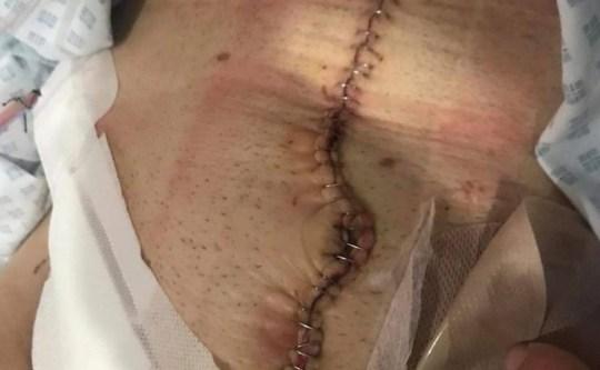 joe castle's scar following surgery