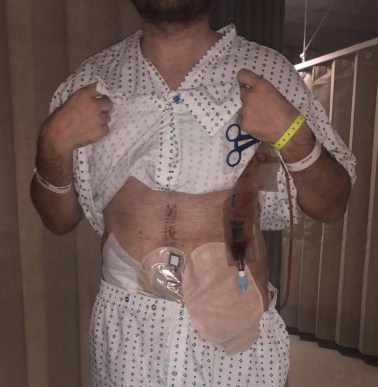 joe castle after being fitted with a stoma bag