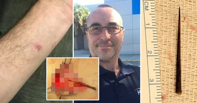 Alex Maglione, who discovered a thorn had been in his arm for four years