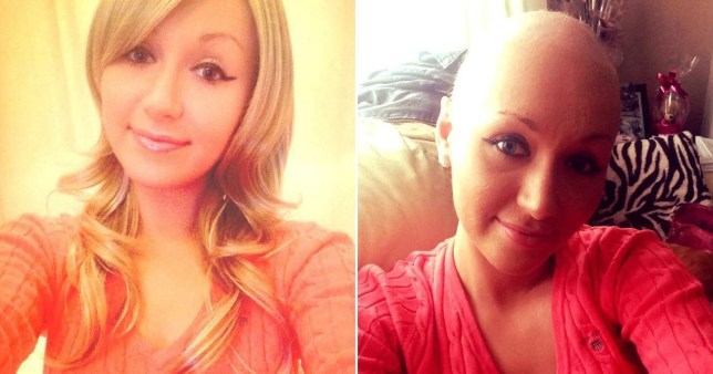 Emma Swain pictured before and after undergoing treatment for her cancer