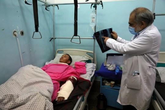 Un médecin regarde une radiographie d'un homme soigné dans un hôpital après une attaque meurtrière à l'Université de Kaboul