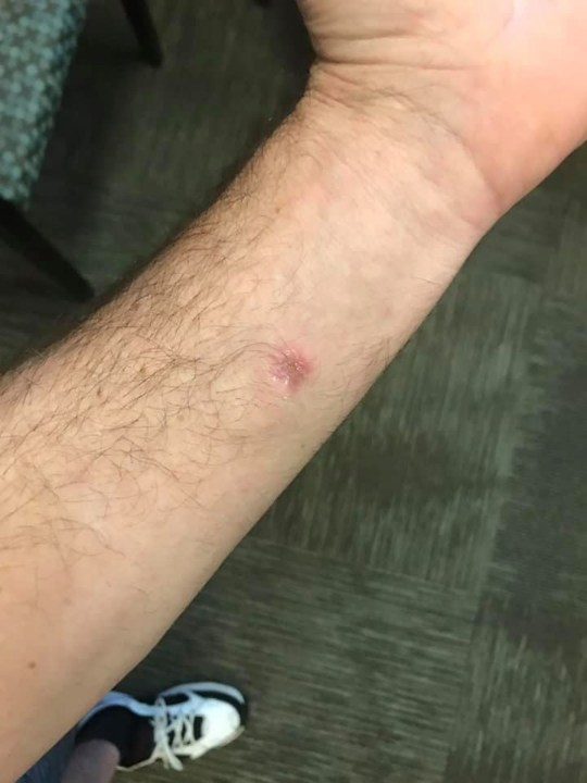 Alex's arm before the thorn was removed