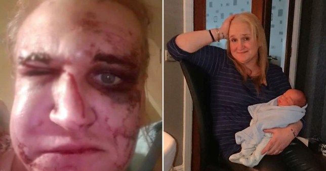 Mum suffers horrific injuries after being battered in unprovoked attack on doorstep