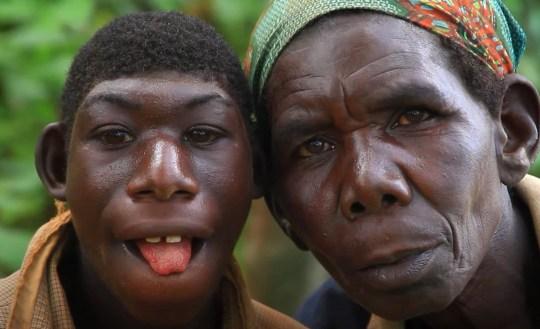 Le garçon de 21 ans du Rwanda, qui ne peut pas parler et mange de l'herbe, sur une photo avec sa mère.  (Flash info)