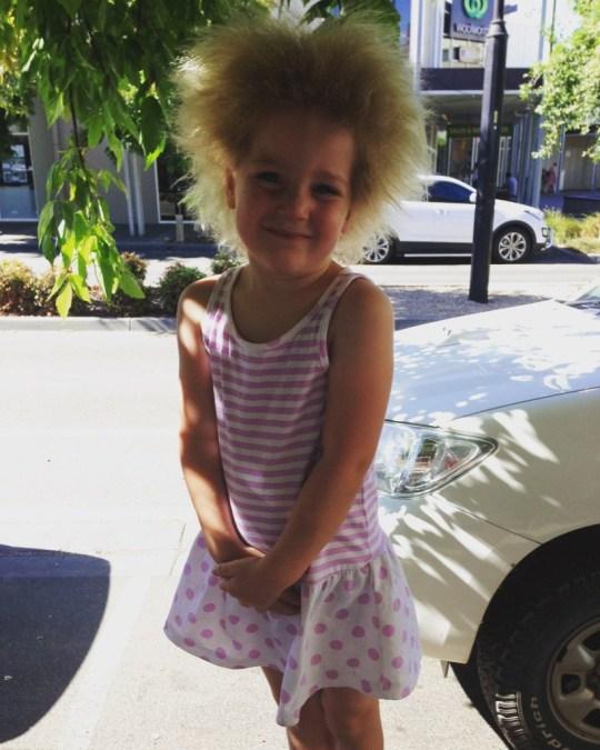 Shilah Calvert-Yin who has uncombable hair syndrome.