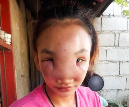 Nueva Ecija, Philippines (photographies, vidéo) ?????? COPIE DE NOUVELLES - AVEC VIDÉO ET PHOTOS ?????? Le visage d'une belle adolescente philippine a été ravagé par une maladie mystérieuse qui a commencé comme un bouton.  Mary Ann Regacho, 17 ans, a remarqué un point noir sur le côté de son nez l'année dernière à Nueva Ecija, aux Philippines.  Au début, elle pensait que le bouton têtu apparaissant sur son visage pendant des semaines était uniquement dû à des problèmes hormonaux.  Elle a donné naissance à un petit garçon l'année dernière à 16 ans et pensait que les boutons étaient normaux.  Cependant, elle a pressé l'endroit et quelques jours plus tard, cela a commencé à devenir douloureux jusqu'à ce qu'il commence à se répandre sur son visage `` comme un ballon qui se gonfle ''.  La jeune mère d'un enfant a essayé de guérir l'infection avec des plantes médicinales à la maison, mais sans succès.  S'exprimant cette semaine, elle a déclaré que la croissance s'était propagée sur l'arête de son nez, ses joues et son front.  Mary a déclaré: «Je pensais que ce n'était qu'un bouton commun, mais ça faisait tellement mal que je ne pouvais pas dormir la nuit.  J'ai tout essayé pour guérir mais rien n'a fonctionné.  `` Maintenant, j'ai l'impression que mon visage ne sera plus jamais le même. '' Son mari, Albert Sales, travaille à temps partiel dans la ferme d'un voisin sans un revenu stable, elle ne pouvait donc pas se permettre un hôpital ou des médicaments .  Maintenant, la bosse a presque couvert son visage et affectant sa vision car elle avait atteint le coin de ses yeux.  Après presque un an à endurer la masse douloureuse, elle est allée à l'hôpital pour la faire contrôler.  Cependant, le petit hôpital provincial ne disposait pas de l'équipement adéquat pour diagnostiquer sa mystérieuse maladie, ils ont donc dû être transférés dans un établissement plus grand.  Incapable de payer les frais médicaux, le mari inquiet Albert a maintenant fait appel à de bons samaritains pour