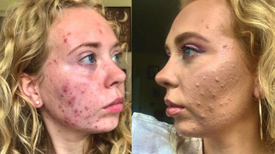 She now posts images of her skin, with and without makeup on Instagram