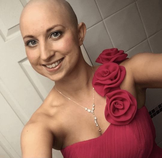 Tori wearing a dress and necklace. She has lost her hair following treatment.