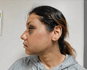Side profile photo of woman with black eye