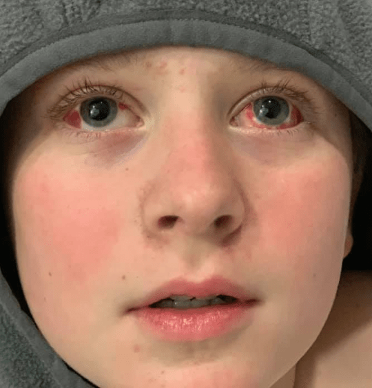 Boy in hoodie with bloodshot eyes