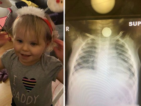 Surgeons remove battery the size of 10p coin from toddler's gullet